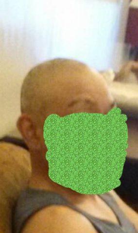円形脱毛症で剃毛